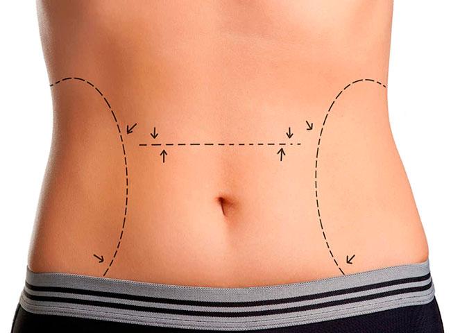Abdominoplastia - cirurgia plástica para redução da barriga.