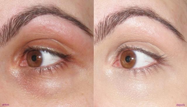 olheiras tratamento
