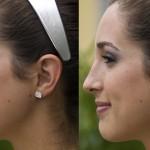 rinoplastia plástica no nariz 1