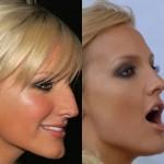 rinoplastia plástica no nariz 15