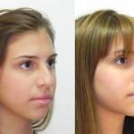 rinoplastia plástica no nariz 19