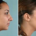 rinoplastia plástica no nariz 2