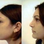 rinoplastia plástica no nariz 20