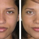 rinoplastia plástica no nariz 22