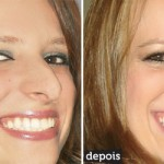 rinoplastia plástica no nariz 23