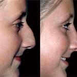 rinoplastia plástica no nariz 5