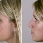 rinoplastia plástica no nariz 7