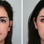 rinoplastia plástica no nariz 8
