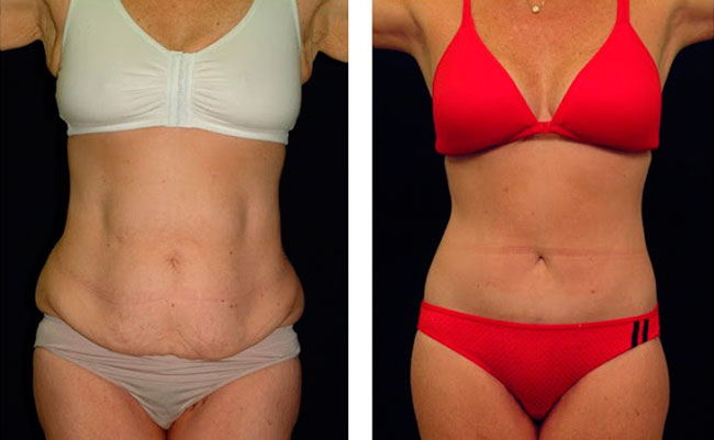 Foto de Antes e Depois de Abdominoplastia
