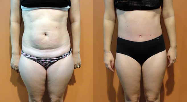 Redução visível da barriga em antes e depois de abdominosplastia