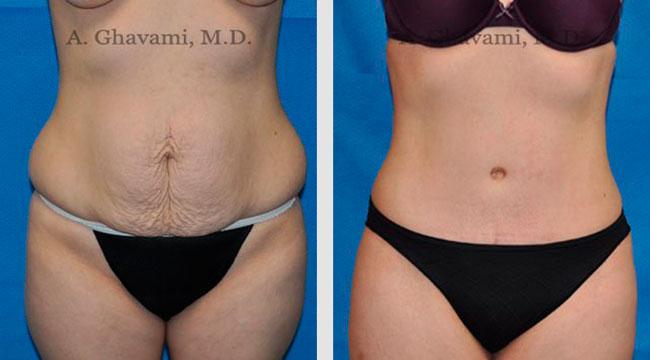 abdominoplastia antes e depois redução da barriga