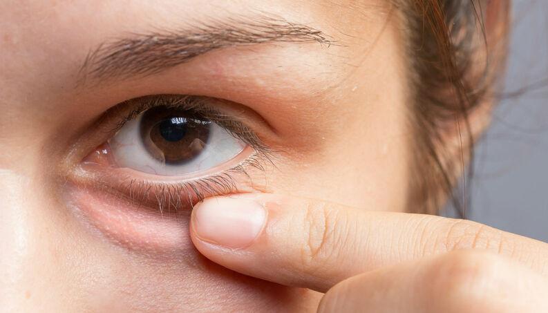 Como Tratar as Olheiras